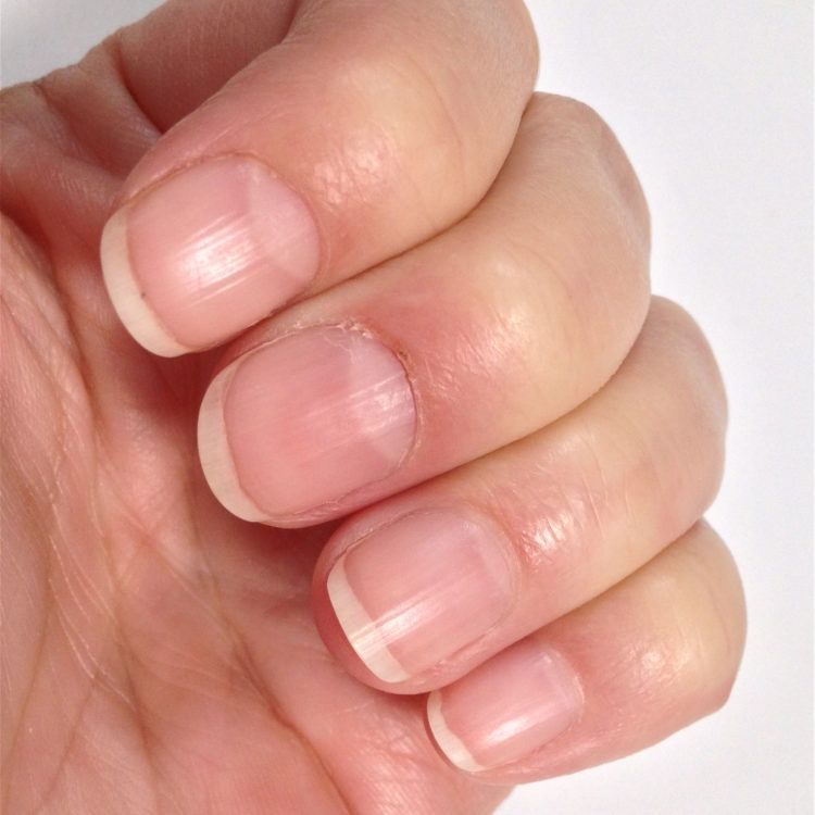 Healthy pinkish fingernails